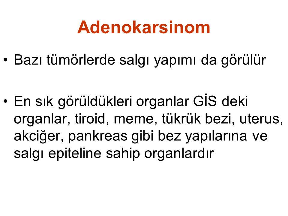 Adenokarsinom Bazı tümörlerde salgı yapımı da görülür En sık görüldükleri organlar GİS deki organlar, tiroid, meme, tükrük bezi, uterus, akciğer, pankreas gibi bez yapılarına ve salgı epiteline sahip organlardır