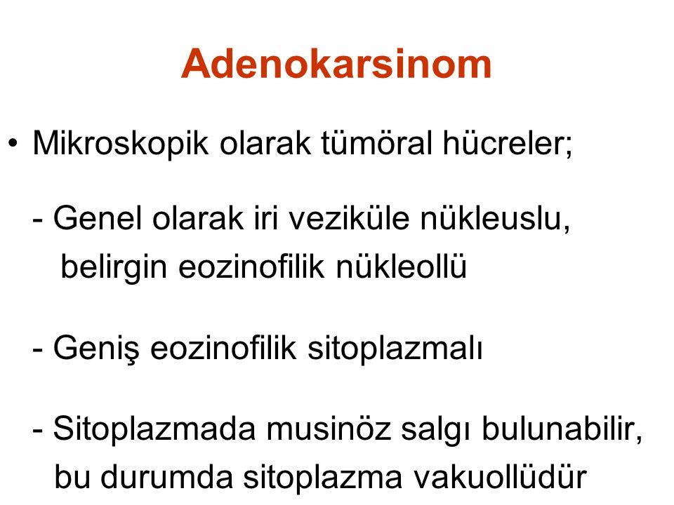 Adenokarsinom Mikroskopik olarak tümöral hücreler; - Genel olarak iri veziküle nükleuslu, belirgin eozinofilik nükleollü - Geniş eozinofilik sitoplazmalı - Sitoplazmada musinöz salgı bulunabilir, bu durumda sitoplazma vakuollüdür