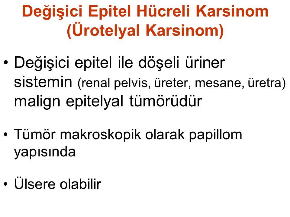 Değişici Epitel Hücreli Karsinom (Ürotelyal Karsinom) Değişici epitel ile döşeli üriner sistemin (renal pelvis, üreter, mesane, üretra) malign epitelyal tümörüdür Tümör makroskopik olarak papillom yapısında Ülsere olabilir
