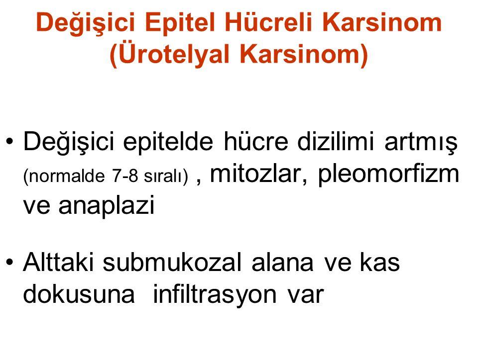 Değişici Epitel Hücreli Karsinom (Ürotelyal Karsinom) Değişici epitelde hücre dizilimi artmış (normalde 7-8 sıralı), mitozlar, pleomorfizm ve anaplazi Alttaki submukozal alana ve kas dokusuna infiltrasyon var