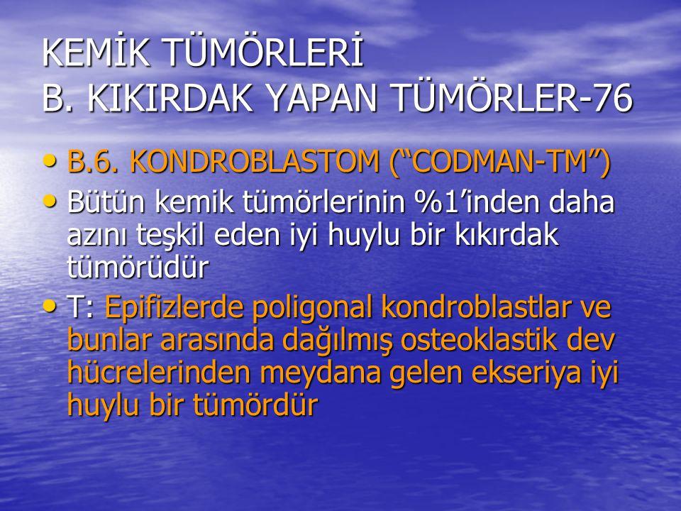 """KEMİK TÜMÖRLERİ B. KIKIRDAK YAPAN TÜMÖRLER-76 B.6. KONDROBLASTOM (""""CODMAN-TM"""") B.6. KONDROBLASTOM (""""CODMAN-TM"""") Bütün kemik tümörlerinin %1'inden daha"""