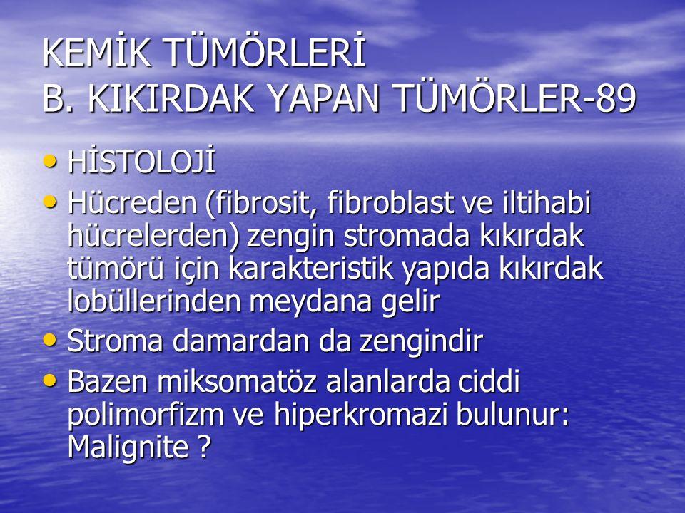 KEMİK TÜMÖRLERİ B. KIKIRDAK YAPAN TÜMÖRLER-89 HİSTOLOJİ HİSTOLOJİ Hücreden (fibrosit, fibroblast ve iltihabi hücrelerden) zengin stromada kıkırdak tüm