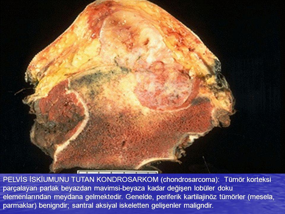 PELVİS İSKİUMUNU TUTAN KONDROSARKOM (chondrosarcoma): Tümör korteksi parçalayan parlak beyazdan mavimsi-beyaza kadar değişen lobüler doku elemenlarınd