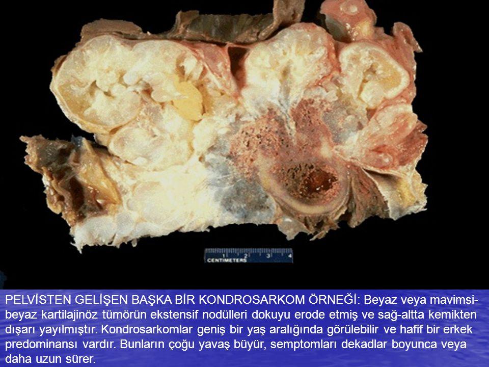 PELVİSTEN GELİŞEN BAŞKA BİR KONDROSARKOM ÖRNEĞİ: Beyaz veya mavimsi- beyaz kartilajinöz tümörün ekstensif nodülleri dokuyu erode etmiş ve sağ-altta ke