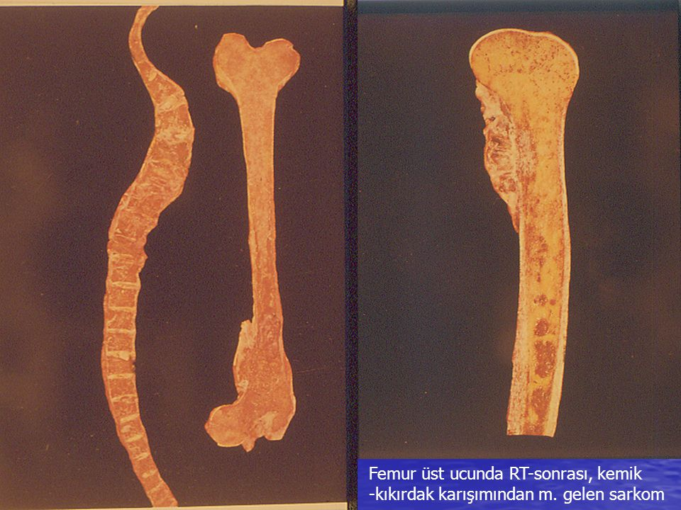 Femur üst ucunda RT-sonrası, kemik -kıkırdak karışımından m. gelen sarkom