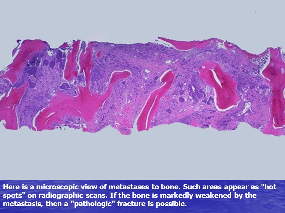 Here is a microscopic view of metastases to bone. Such areas appear as