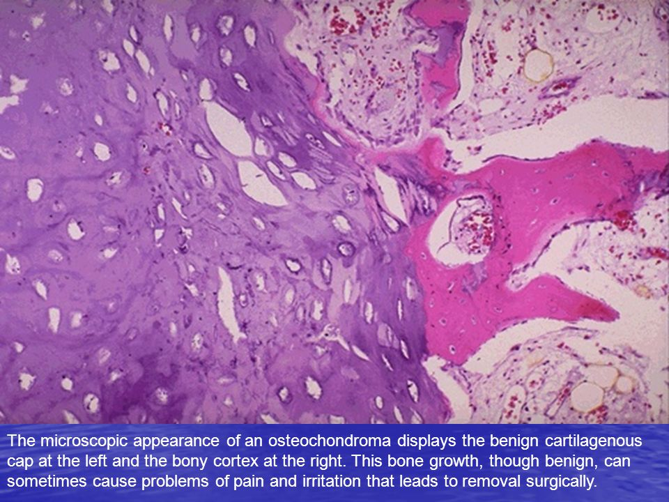 The microscopic appearance of an osteochondroma displays the benign cartilagenous cap at the left and the bony cortex at the right. This bone growth,