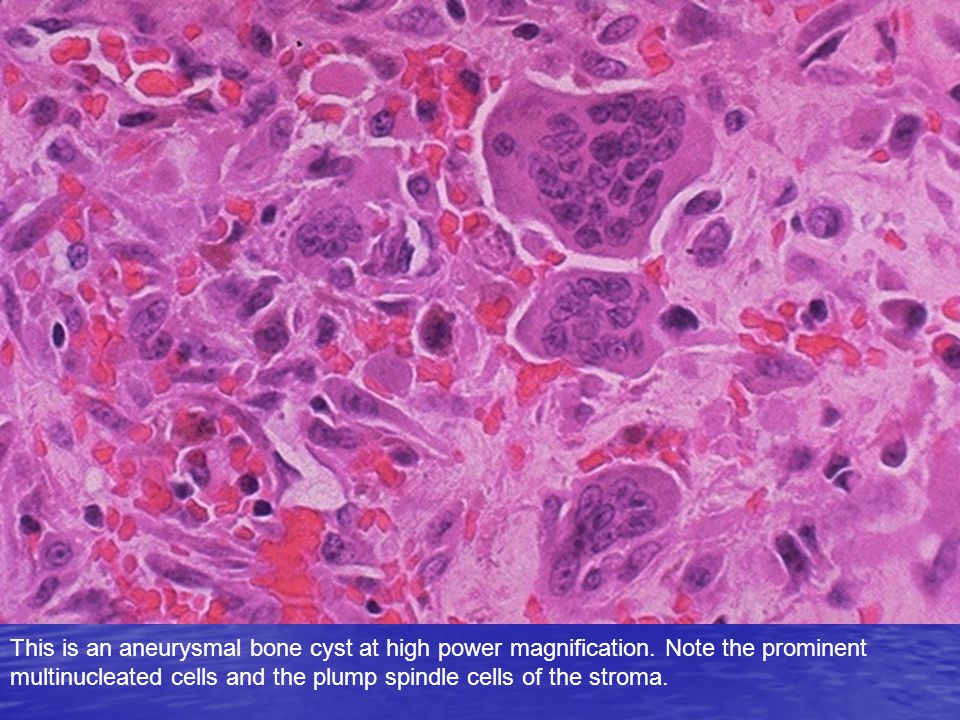 This is an aneurysmal bone cyst at high power magnification. Note the prominent multinucleated cells and the plump spindle cells of the stroma.
