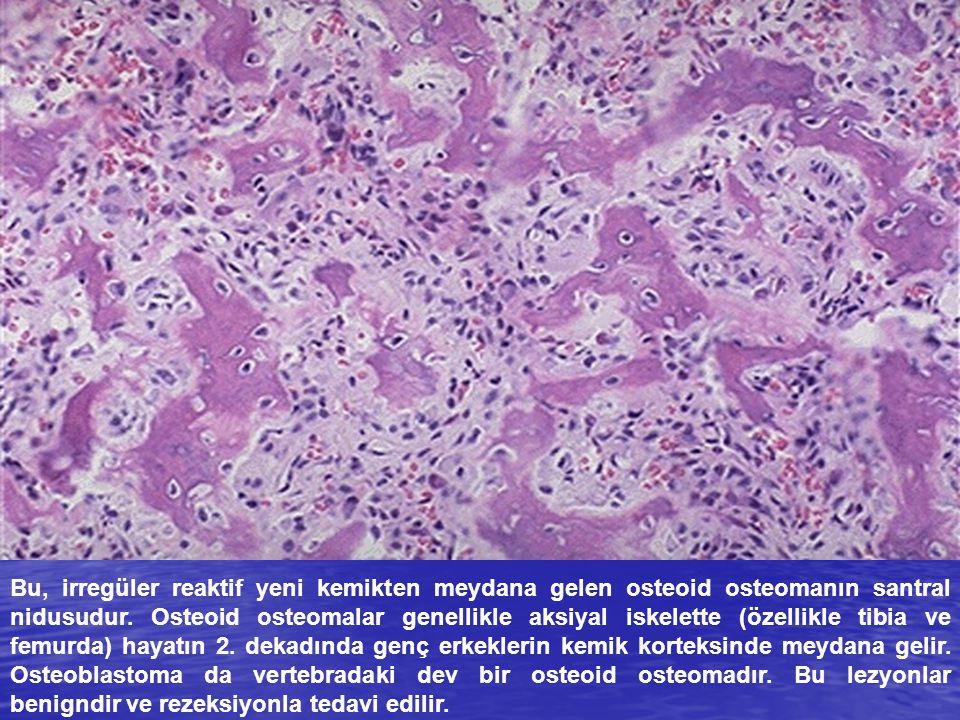 Bu, irregüler reaktif yeni kemikten meydana gelen osteoid osteomanın santral nidusudur. Osteoid osteomalar genellikle aksiyal iskelette (özellikle tib