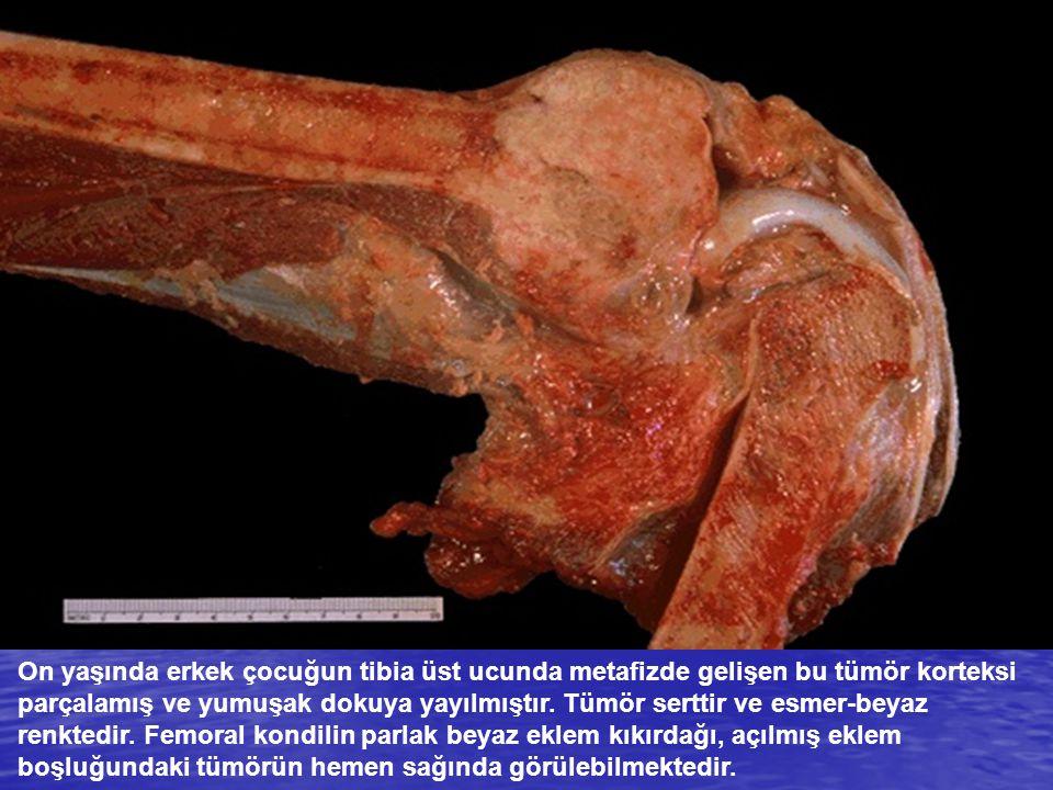 On yaşında erkek çocuğun tibia üst ucunda metafizde gelişen bu tümör korteksi parçalamış ve yumuşak dokuya yayılmıştır. Tümör serttir ve esmer-beyaz r