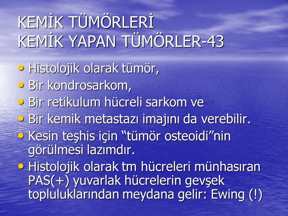 KEMİK TÜMÖRLERİ KEMİK YAPAN TÜMÖRLER-43 Histolojik olarak tümör, Histolojik olarak tümör, Bir kondrosarkom, Bir kondrosarkom, Bir retikulum hücreli sa