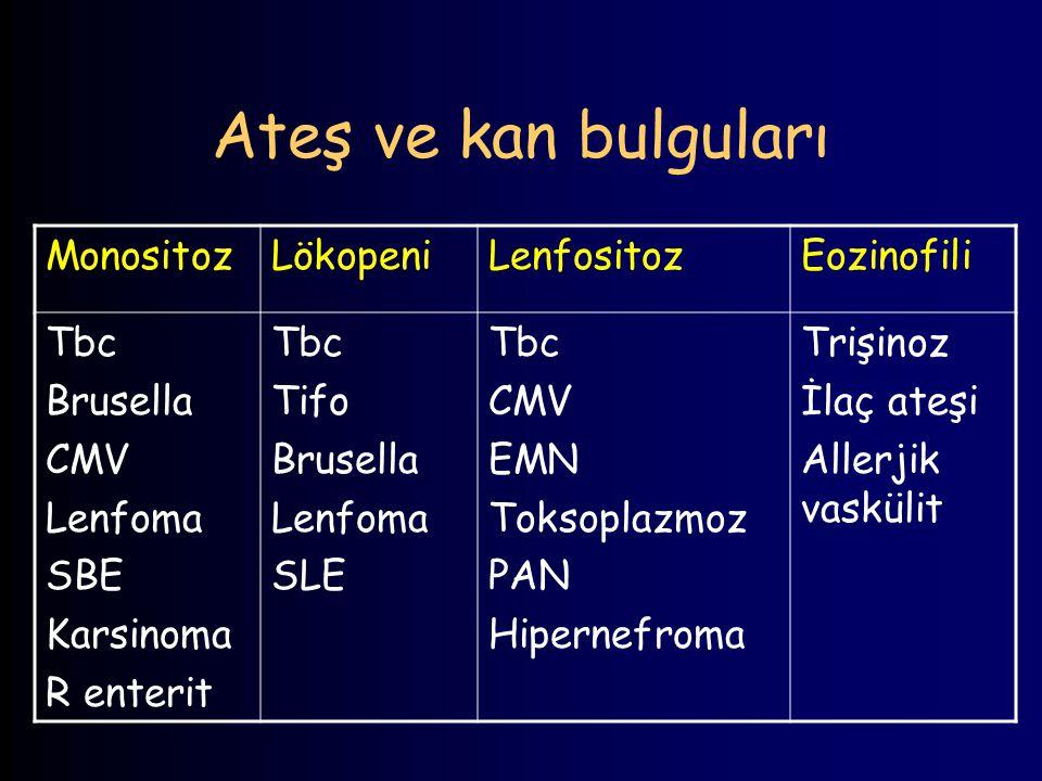 Ateş ve kan bulguları MonositozLökopeniLenfositozEozinofili Tbc Brusella CMV Lenfoma SBE Karsinoma R enterit Tbc Tifo Brusella Lenfoma SLE Tbc CMV EMN