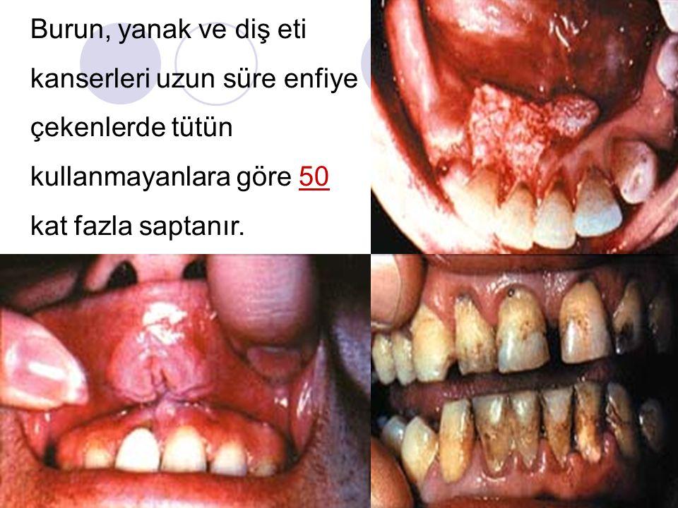 Burun, yanak ve diş eti kanserleri uzun süre enfiye çekenlerde tütün kullanmayanlara göre 50 kat fazla saptanır.