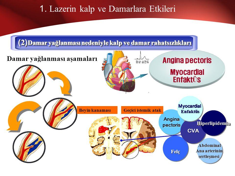 1. Lazerin Kalp ve Damarlara Etkileri Şah damarı- Felç Abdominal ana arteri Bacaklarda dolaşım bozukluğu Kan damarları- kalp rahatsızlıkları Damar har