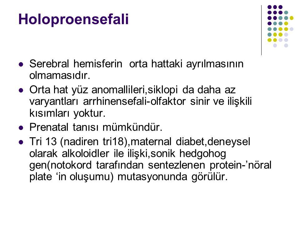 Holoproensefali Serebral hemisferin orta hattaki ayrılmasının olmamasıdır. Orta hat yüz anomallileri,siklopi da daha az varyantları arrhinensefali-olf