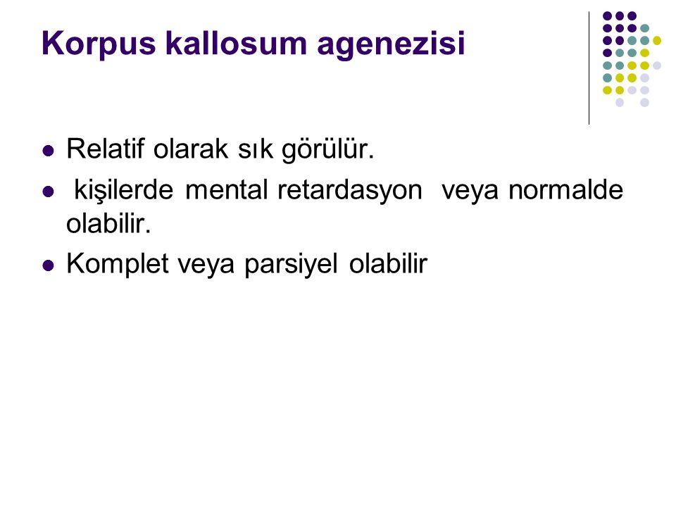 Korpus kallosum agenezisi Relatif olarak sık görülür. kişilerde mental retardasyon veya normalde olabilir. Komplet veya parsiyel olabilir