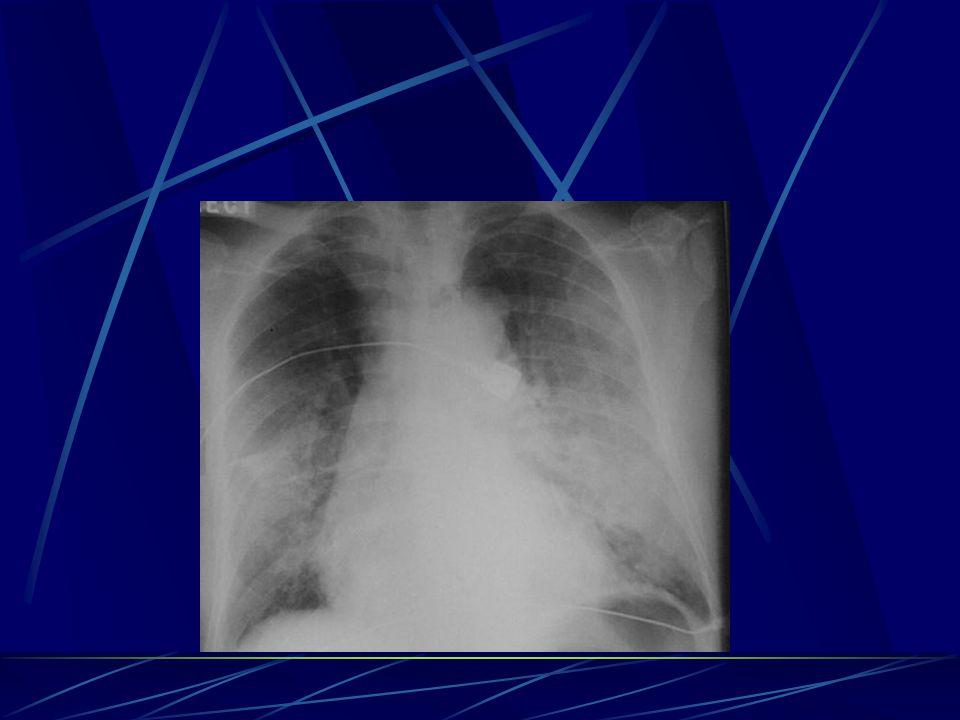 Akciğer grafisi Öykü, fizik muayene ve akciğer grafisi ile hastaların %80'nine tanı konabilir.