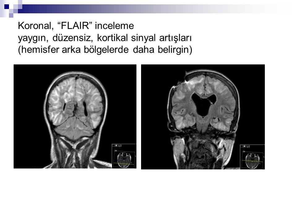 T2-ağırlıklı, sagittal kesit yaygın, düzensiz, kortikal sinyal artışları (hemisfer arka bölgelerde daha belirgin)