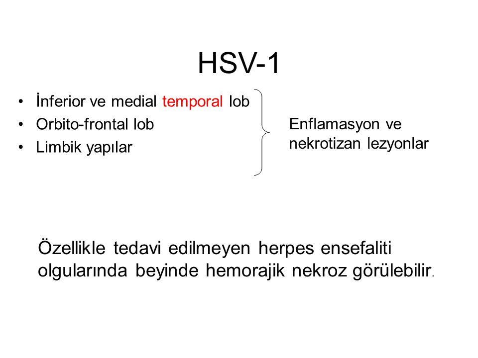 HSV-1 İnferior ve medial temporal lob Orbito-frontal lob Limbik yapılar Enflamasyon ve nekrotizan lezyonlar Özellikle tedavi edilmeyen herpes ensefali