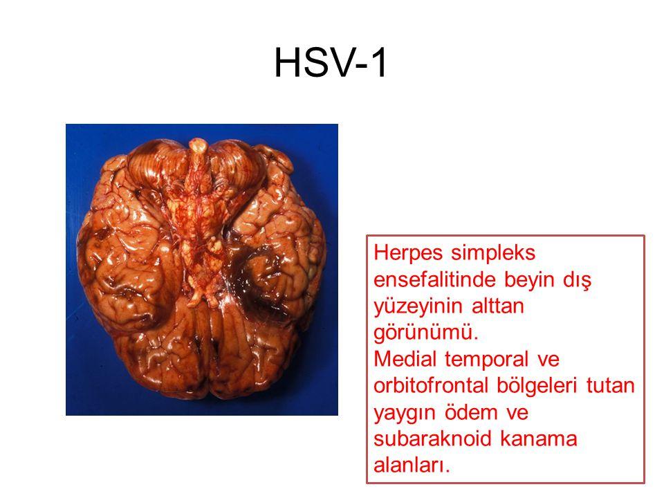 Herpes simpleks ensefalitinde beyin dış yüzeyinin alttan görünümü. Medial temporal ve orbitofrontal bölgeleri tutan yaygın ödem ve subaraknoid kanama