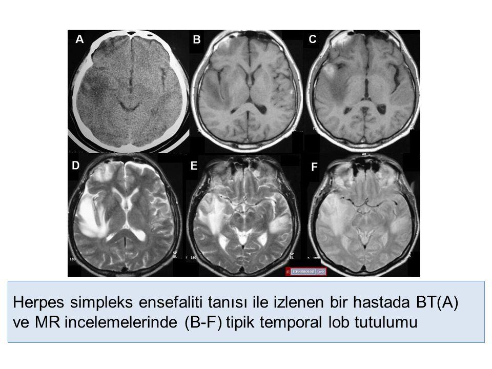 Herpes simpleks ensefaliti tanısı ile izlenen bir hastada BT(A) ve MR incelemelerinde (B-F) tipik temporal lob tutulumu