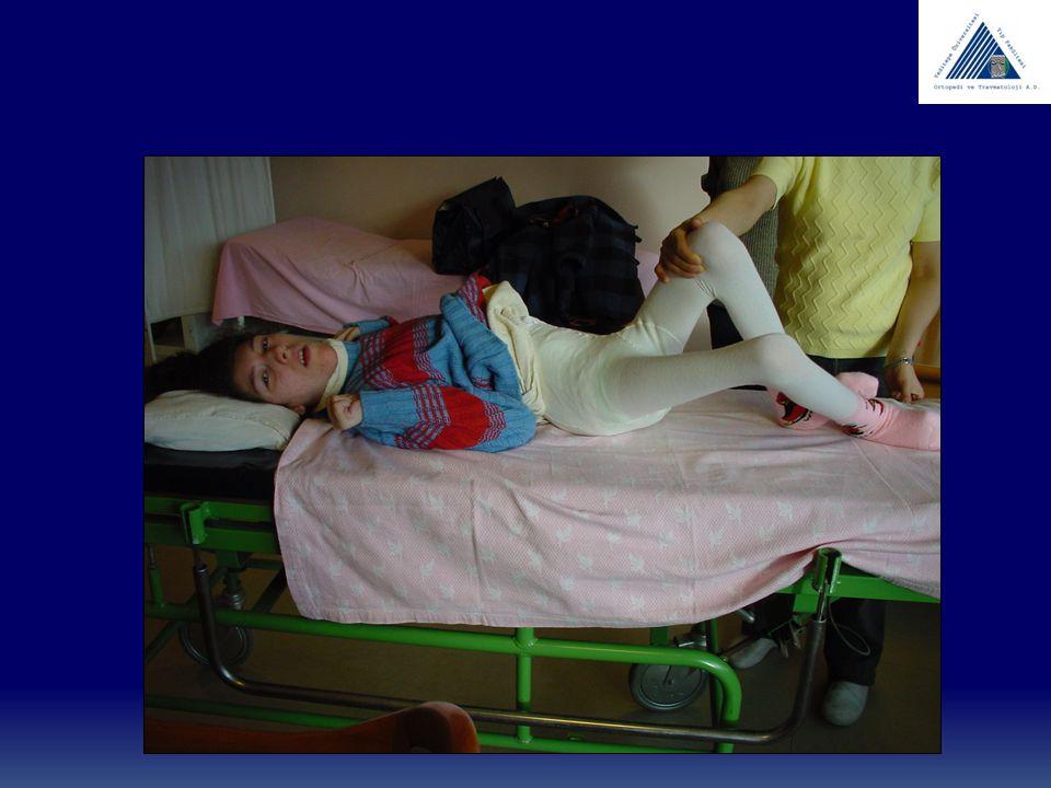 Cerebral palsy TEDAVİ DİZ HAMSTRİNG GEVŞETME DURUŞ FAZINDA DİZ FLEKSİYONDA İSE POPLİTEAL AÇI > 45 DERECE KONTRAKTÜR GELİŞMESİNİ BEKLEME CERRAHİ YAŞI GENELLİKLE 7-12 RECTUS FEMORİS TRANSFERİ SERT DİZ İÇİN