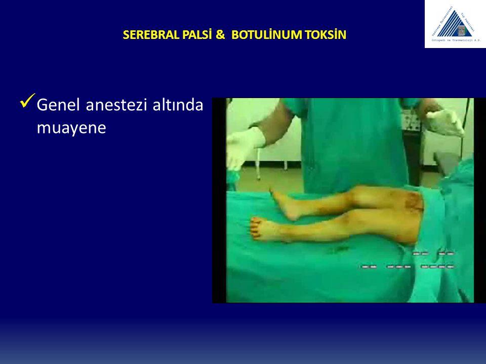 SEREBRAL PALSİ & BOTULİNUM TOKSİN Genel anestezi altında muayene