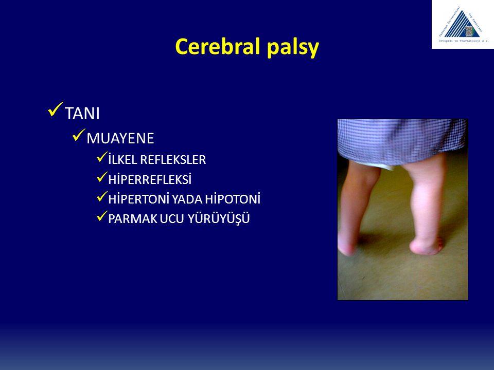 Cerebral palsy KONTRAKTÜR HER ZAMAN SPASTİSİTEYE SEKONDERDİR.