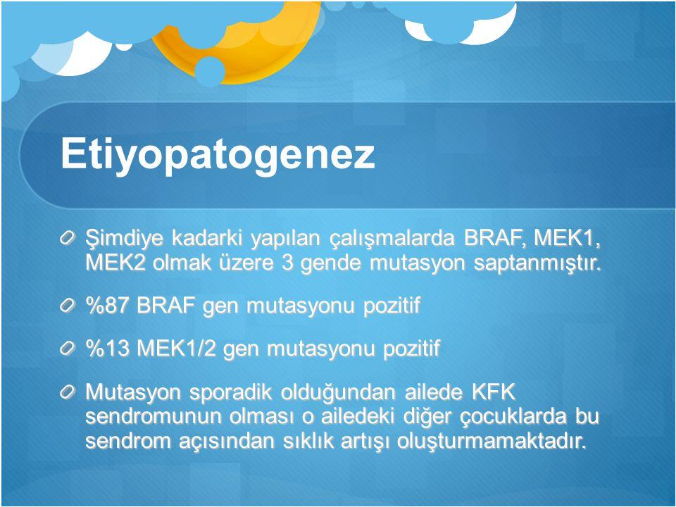 Etiyopatogenez Şimdiye kadarki yapılan çalışmalarda BRAF, MEK1, MEK2 olmak üzere 3 gende mutasyon saptanmıştır. %87 BRAF gen mutasyonu pozitif %13 MEK
