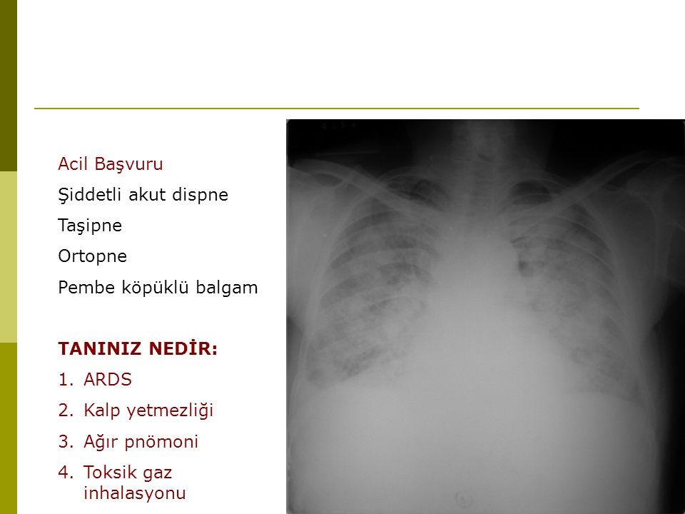 Acil Başvuru Şiddetli akut dispne Taşipne Ortopne Pembe köpüklü balgam TANINIZ NEDİR: 1.ARDS 2.Kalp yetmezliği 3.Ağır pnömoni 4.Toksik gaz inhalasyonu