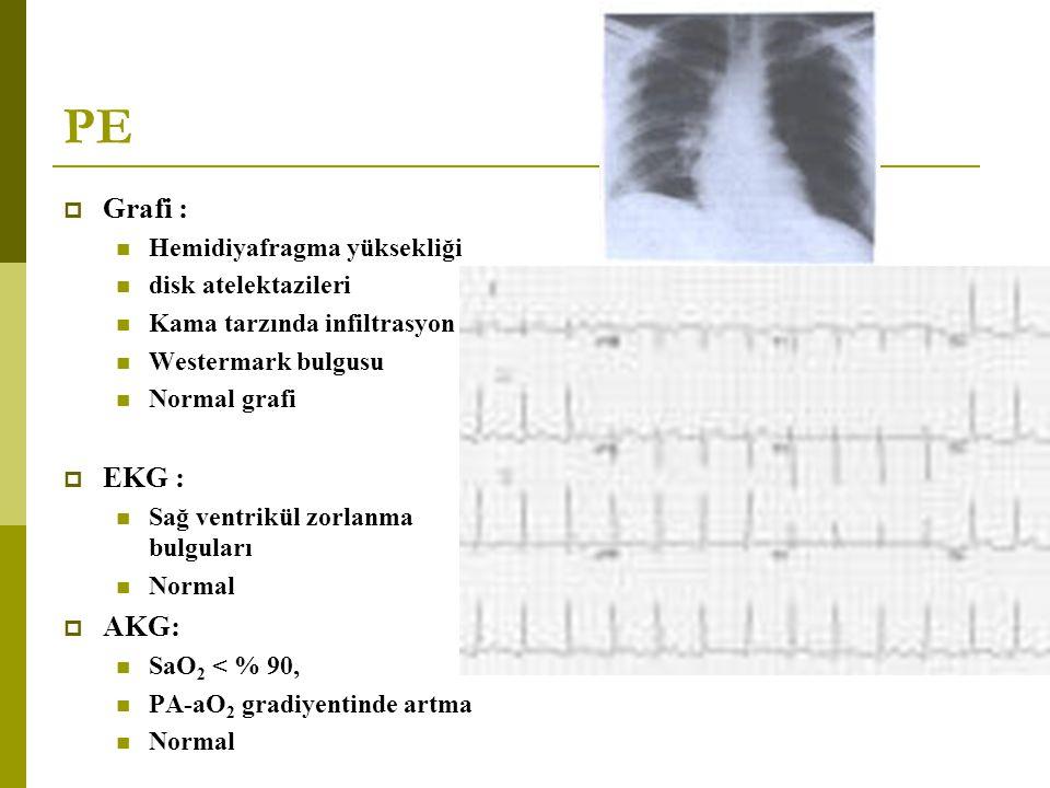 PE  Grafi : Hemidiyafragma yüksekliği disk atelektazileri Kama tarzında infiltrasyon Westermark bulgusu Normal grafi  EKG : Sağ ventrikül zorlanma b