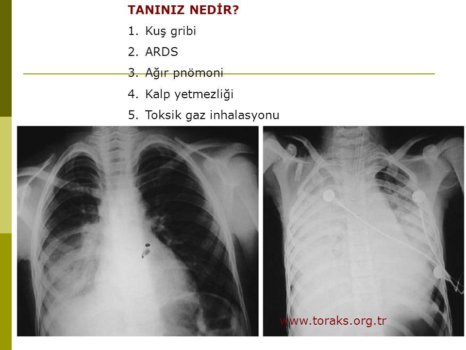 TANINIZ NEDİR? 1.Kuş gribi 2.ARDS 3.Ağır pnömoni 4.Kalp yetmezliği 5.Toksik gaz inhalasyonu www.toraks.org.tr