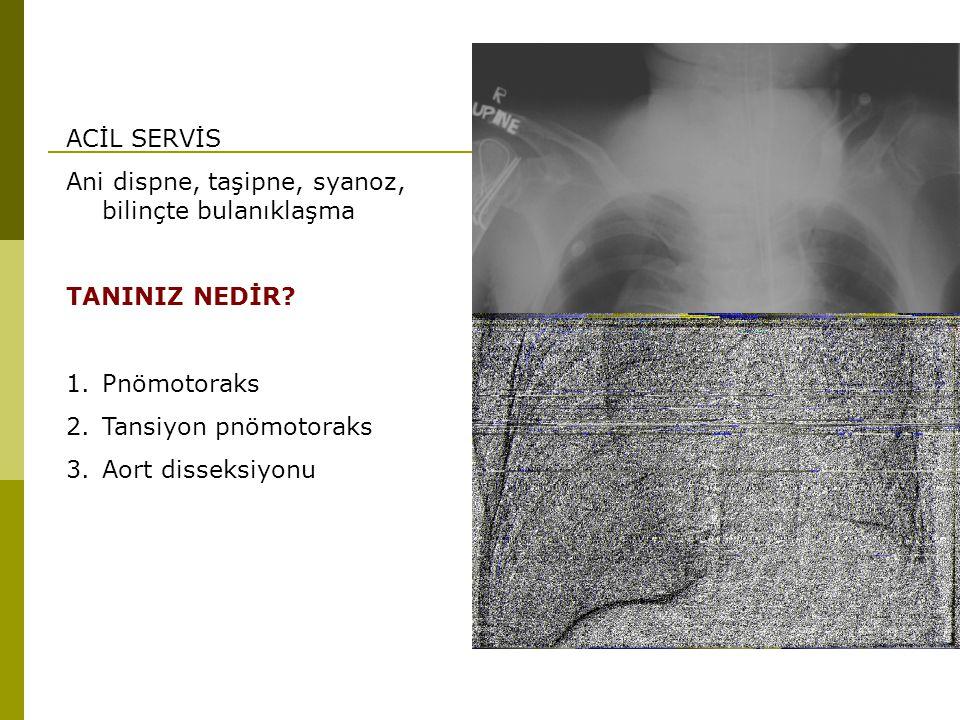 ACİL SERVİS Ani dispne, taşipne, syanoz, bilinçte bulanıklaşma TANINIZ NEDİR? 1.Pnömotoraks 2.Tansiyon pnömotoraks 3.Aort disseksiyonu
