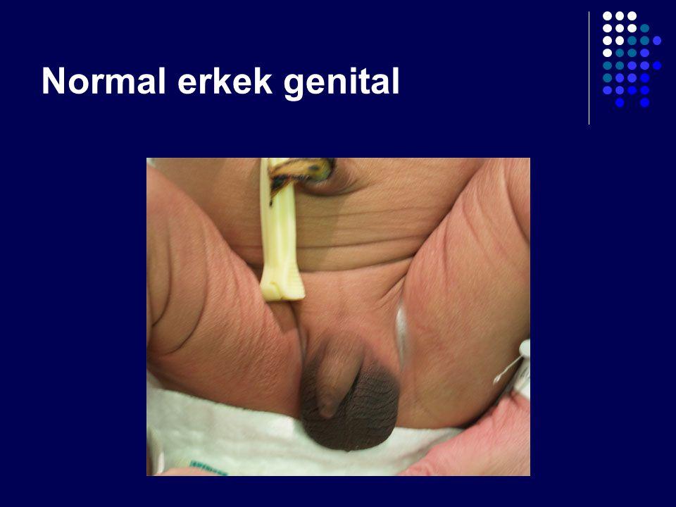 Normal erkek genital