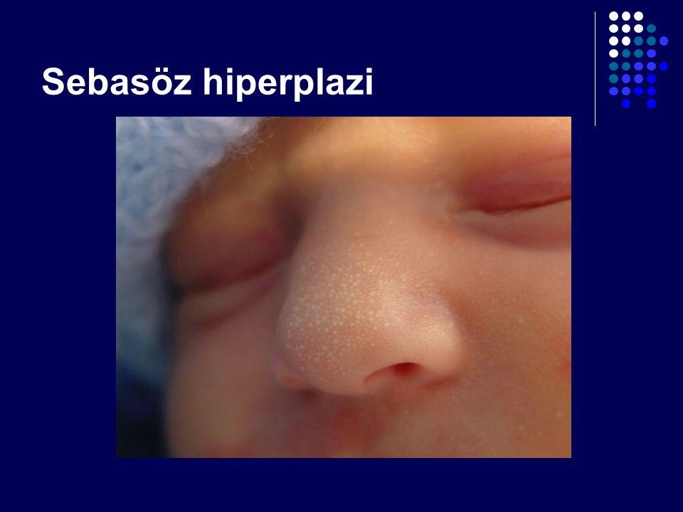 Sebasöz hiperplazi