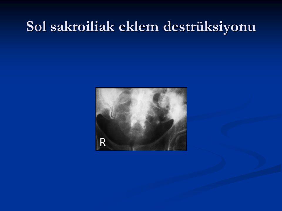 Sol sakroiliak eklem destrüksiyonu