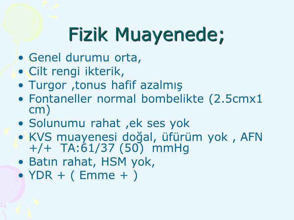 KAH-21 hidroksilaz eksikliği Klinik formlar: P450c21 genindeki mutasyonun tipine göre değişir.