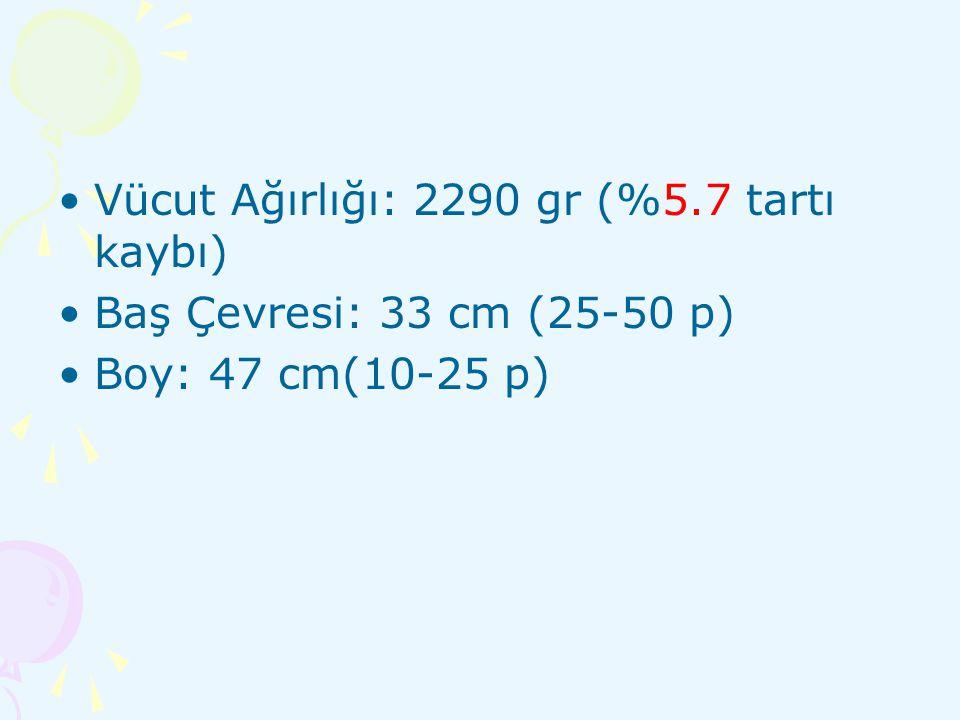 KAH-21 hidroksilaz eksikliği –Nonklasik tip: en hafif form.