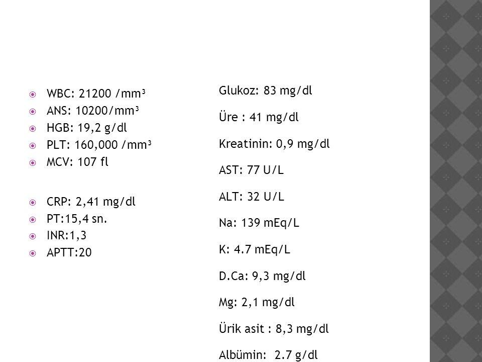  WBC: 21200 /mm³  ANS: 10200/mm³  HGB: 19,2 g/dl  PLT: 160,000 /mm³  MCV: 107 fl  CRP: 2,41 mg/dl  PT:15,4 sn.