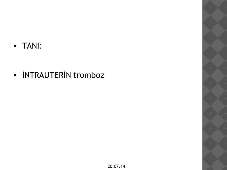 TANI: İNTRAUTERİN tromboz 20.07.14