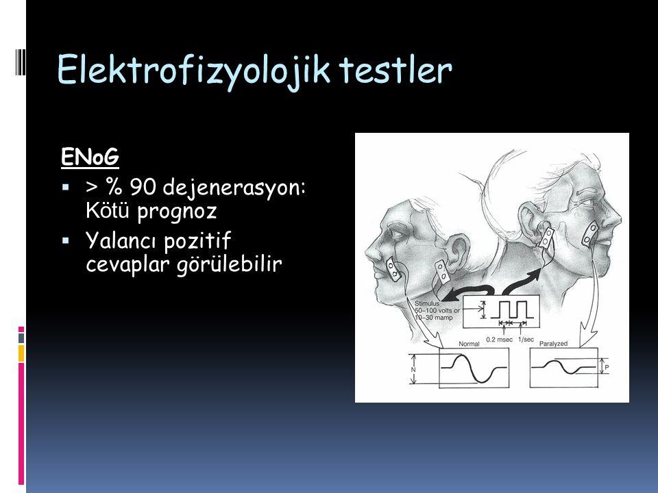 Elektrofizyolojik testler ENoG  > % 90 dejenerasyon: Kötü prognoz  Yalancı pozitif cevaplar görülebilir