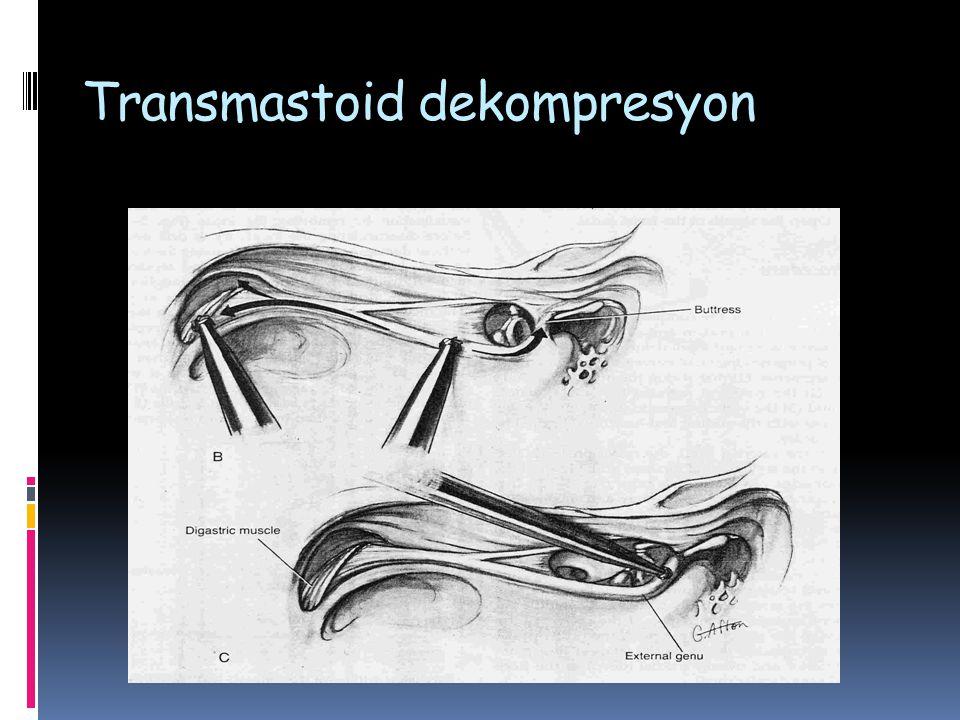 Transmastoid dekompresyon