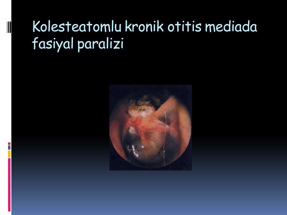 Kolesteatomlu kronik otitis mediada fasiyal paralizi