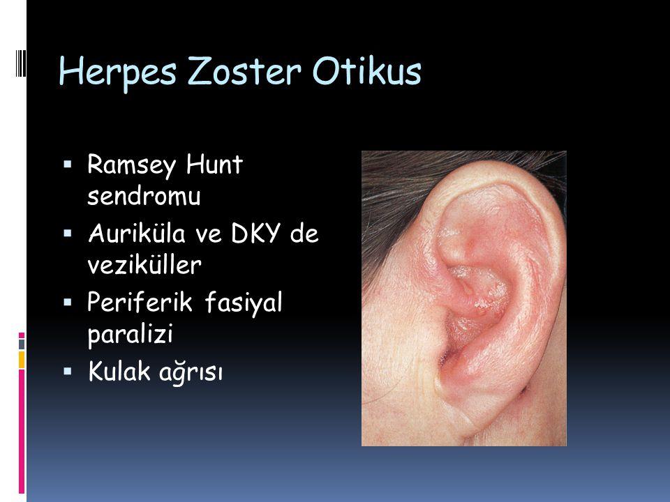 Herpes Zoster Otikus  Ramsey Hunt sendromu  Auriküla ve DKY de veziküller  Periferik fasiyal paralizi  Kulak ağrısı