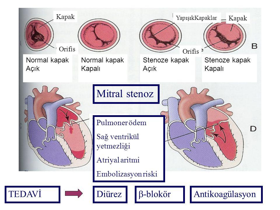 MS Pulmoner ödem Sağ ventrikül yetmezliği Atriyal aritmi Embolizasyon riski Mitral stenoz Normal kapak Açık Kapak Orifis Normal kapak Kapalı Stenoze k