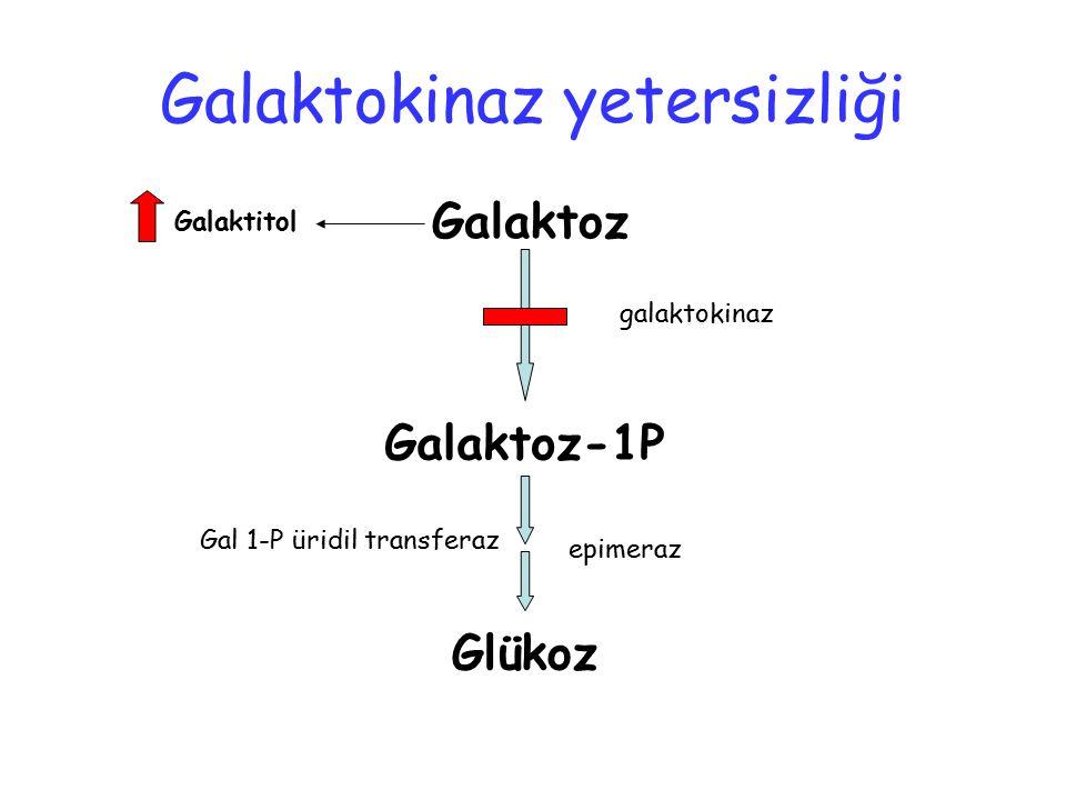 Galaktokinaz yetersizliği Galaktoz Galaktoz-1P Glükoz Galaktitol galaktokinaz Gal 1-P üridil transferaz epimeraz
