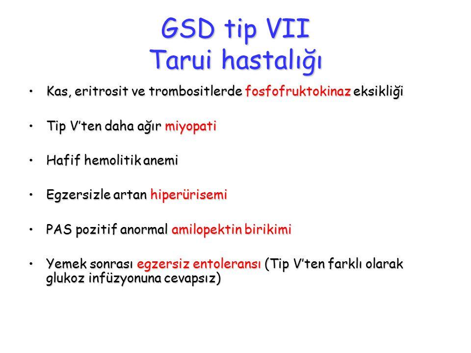 GSD tip VII Tarui hastalığı Kas, eritrosit ve trombositlerde fosfofruktokinaz eksikliğiKas, eritrosit ve trombositlerde fosfofruktokinaz eksikliği Tip