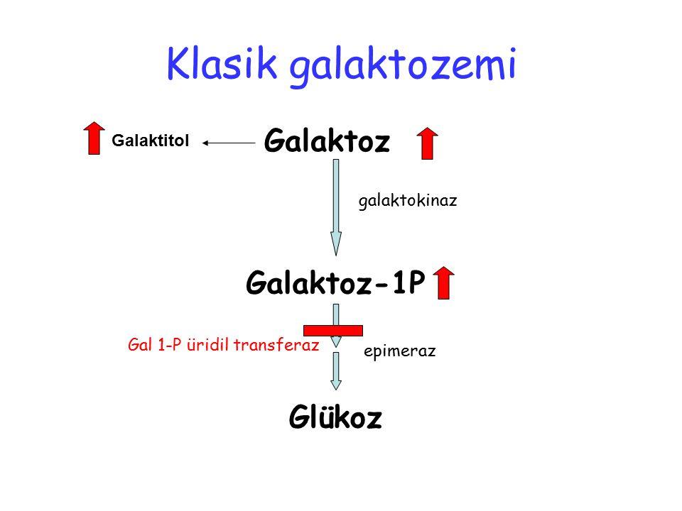 Galaktoz Galaktoz-1P Glükoz Galaktitol galaktokinaz Gal 1-P üridil transferaz epimeraz Klasik galaktozemi