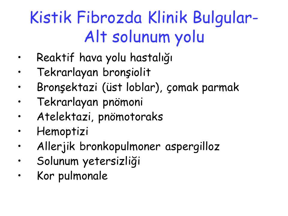 Kistik Fibrozda Klinik Bulgular- Alt solunum yolu Reaktif hava yolu hastalığı Tekrarlayan bronşiolit Bronşektazi (üst loblar), çomak parmak Tekrarlaya