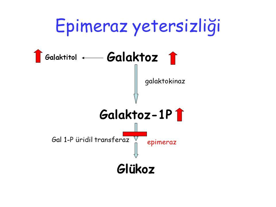 Galaktoz Galaktoz-1P Glükoz Galaktitol galaktokinaz Gal 1-P üridil transferaz epimeraz Epimeraz yetersizliği